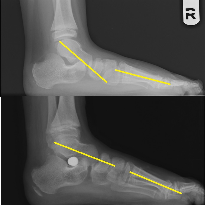 Implants - Podiatry, Orthopedics, & Physical Therapy Ankle Pronation Surgery