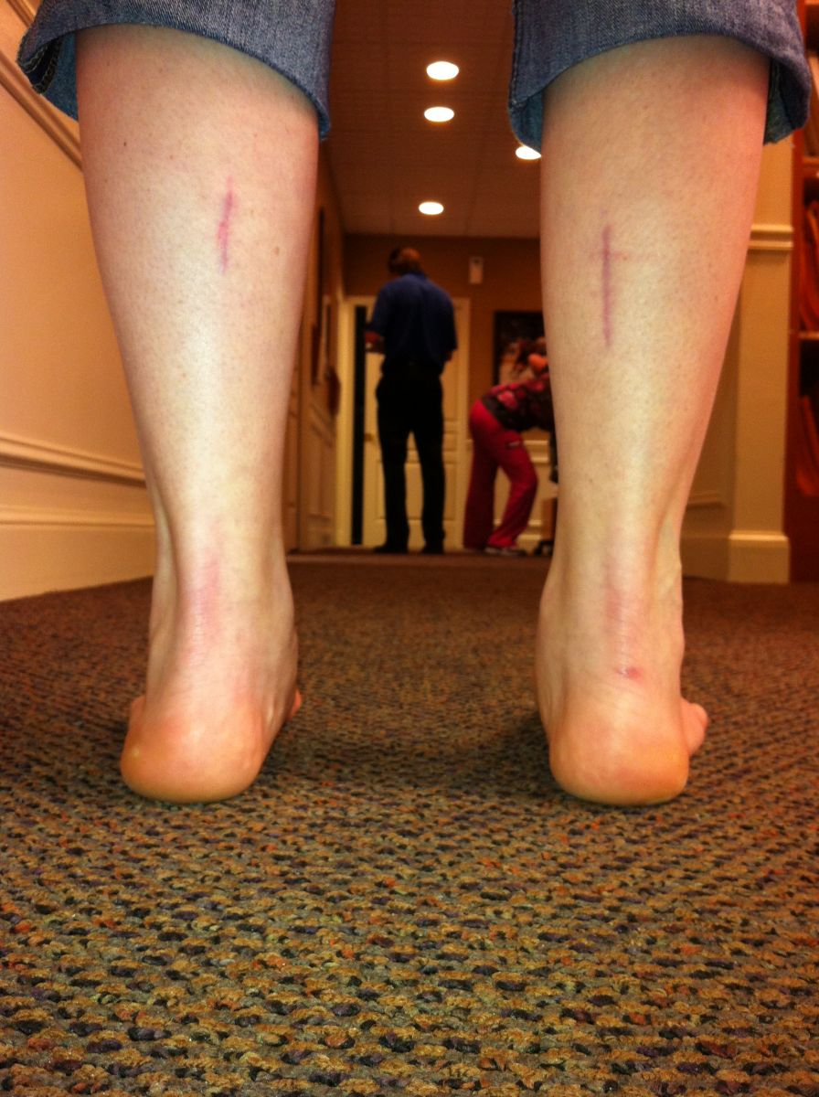 Flatfeet Pictures - Podiatry, Orthopedics, & Physical Therapy