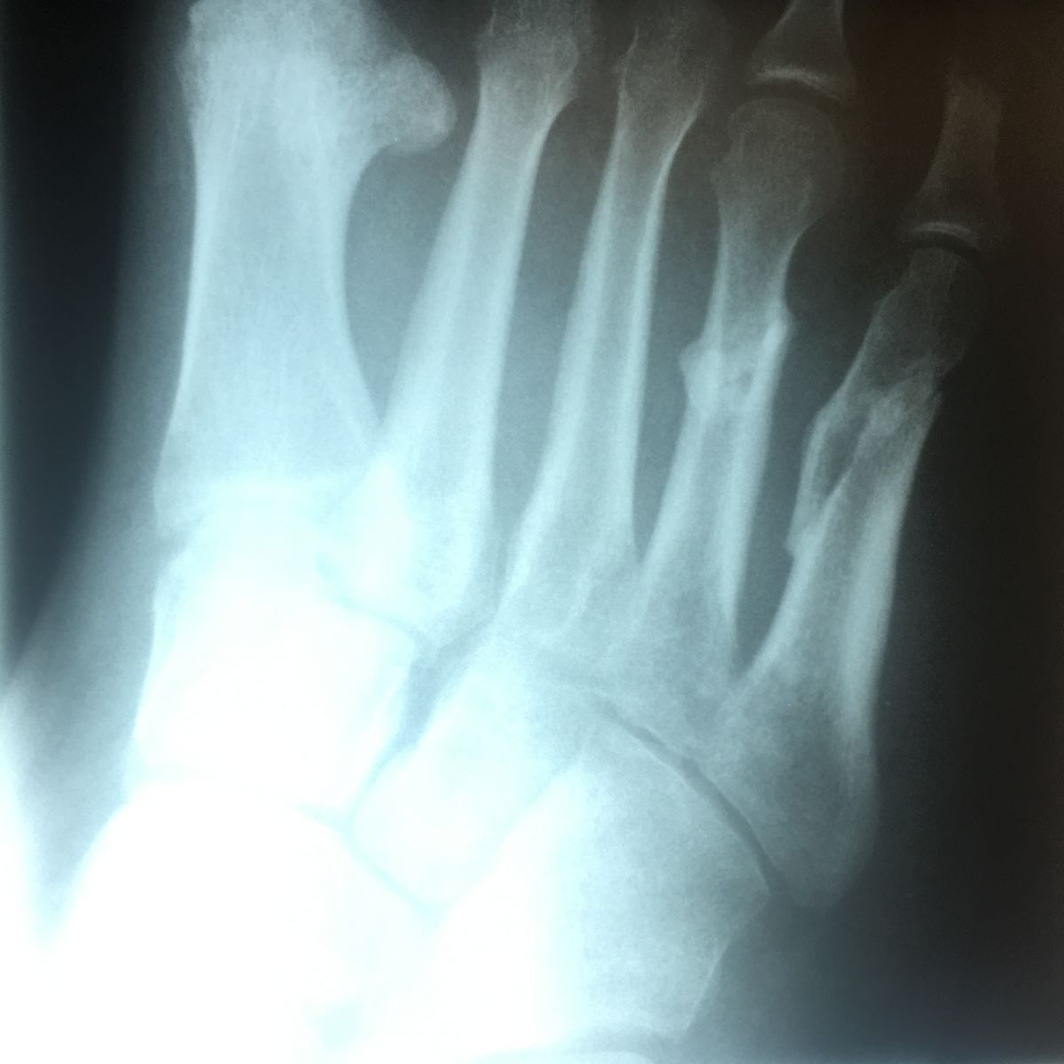 Metatarsal Fractures Continued - Podiatry, Orthopedics
