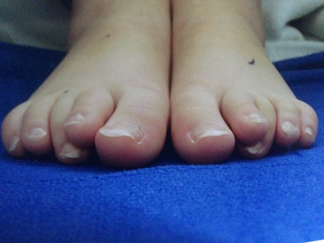 Correct Toes Helps Child with Crooked Toes - YouTube