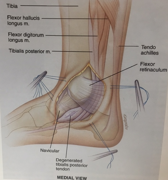 Posterior Tibial Tendon Podiatry Orthopedics Physical Therapy