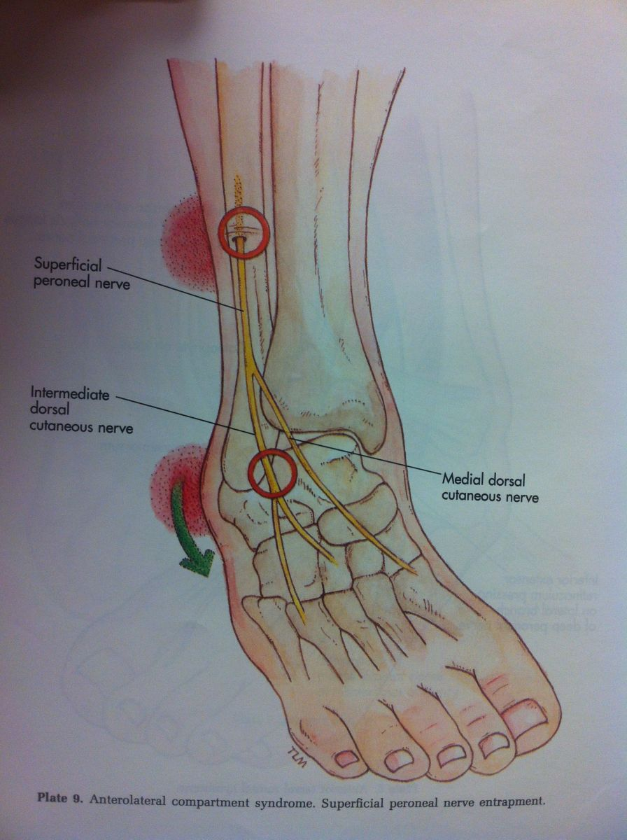 Superficial Peroneal - Podiatry, Orthopedics, & Physical Therapy