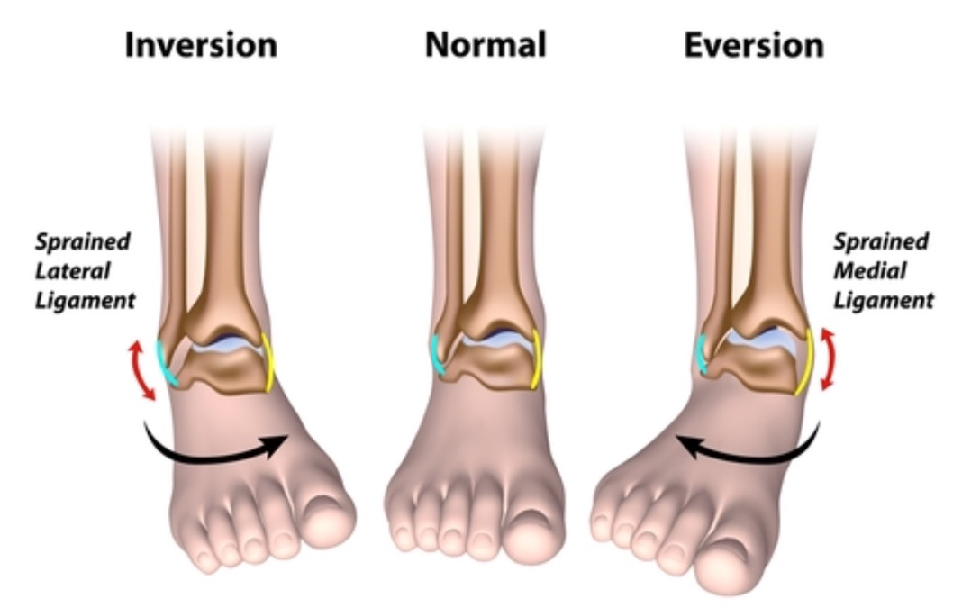 Ankle Sprains Adults Podiatry Orthopedics Physical Therapy