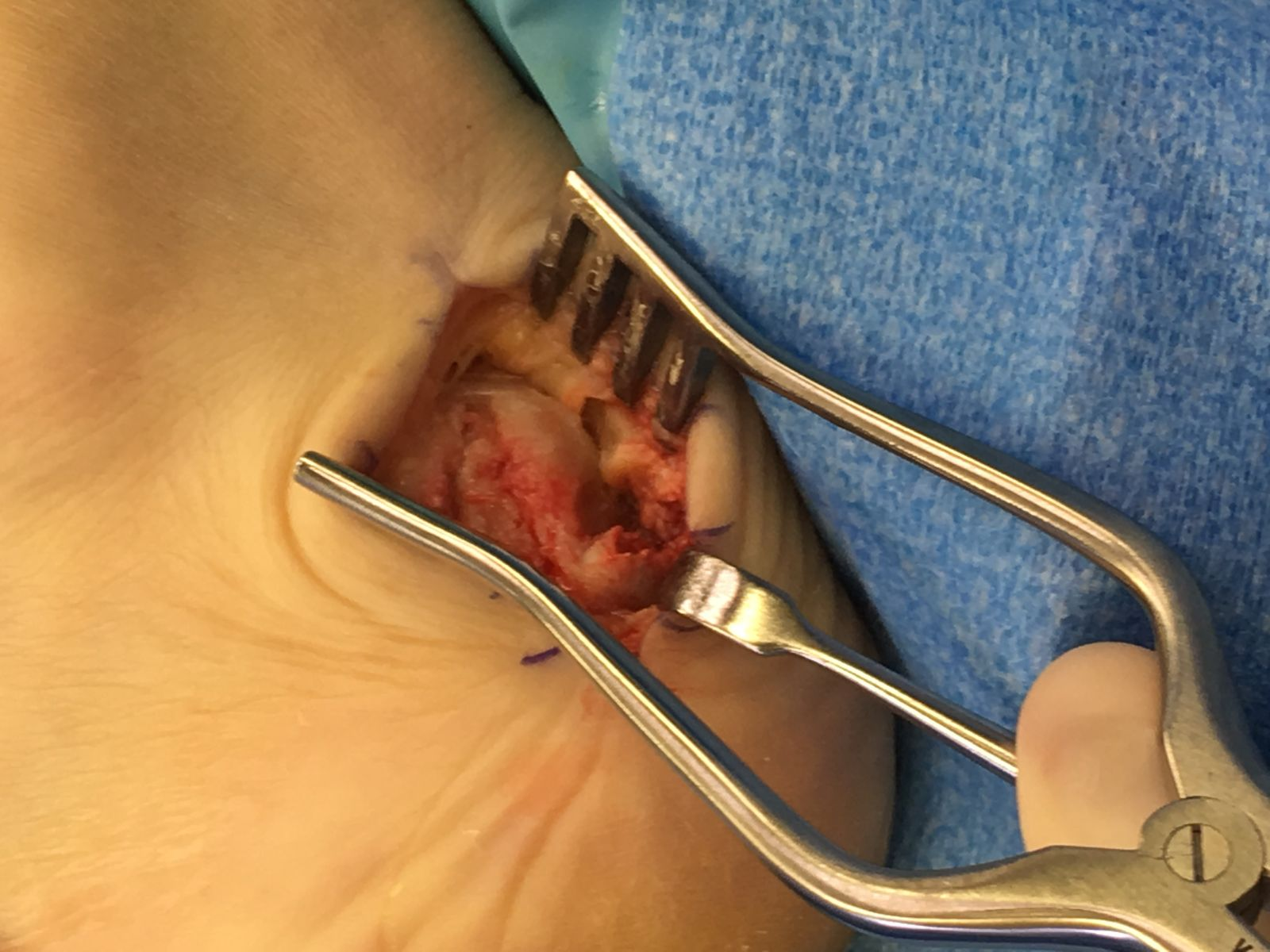 achilles spur podiatry orthopedics amp physical therapy