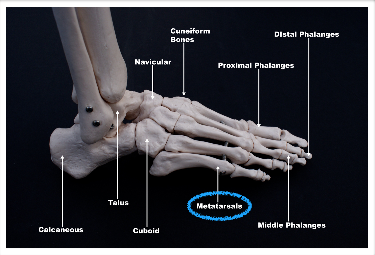 Metatarsal Fractures - Podiatry, Orthopedics, & Physical Therapy