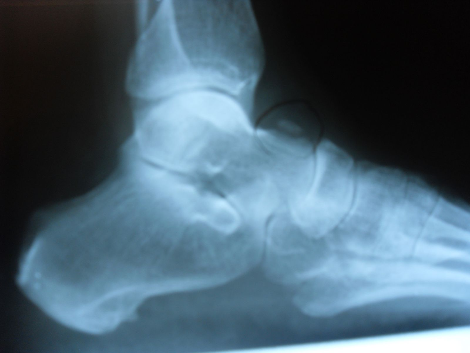 Talus Fracture - Podiatry, Orthopedics, - 85.6KB