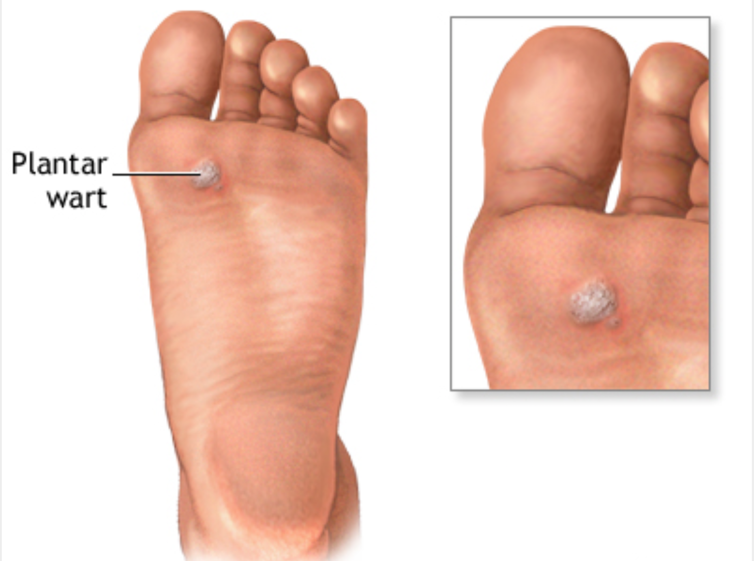 Warts Podiatry Orthopedics Physical Therapy