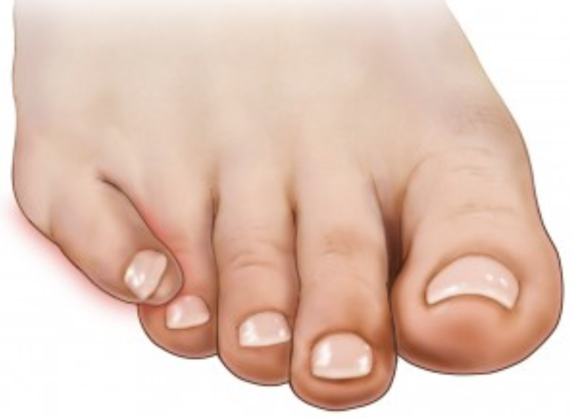 Toe Disorders In Children Podiatry Orthopedics Physical Therapy