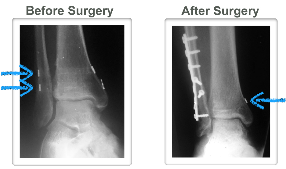Syndesmotic - Podiatry, Orthopedics, & Physical Therapy