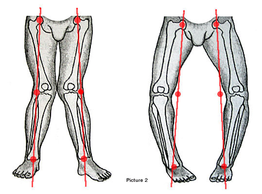 below is an illustration comparing genu valgum knock knee on the left to genu varum bow leg on the right