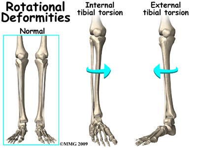 External Tibial Torsion Podiatry Orthopedics Physical Therapy