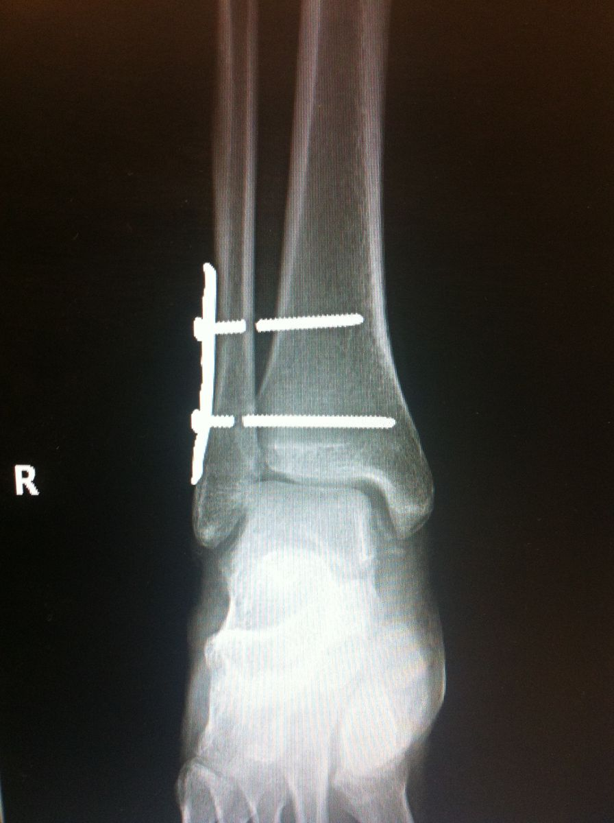 Foot fracture x ray pictures 5th Metatarsal Fracture Recovery Foot and Toe Problems