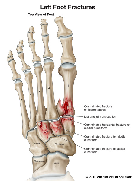 Lisfranc\'s - Podiatry, Orthopedics, & Physical Therapy