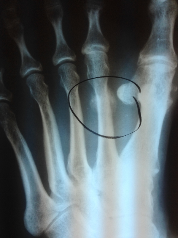 Spiral Fracture 5Th Metatarsal Healing Time
