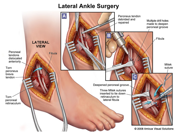 an overview of the ankle injuries in anatomy and medical research This brochure offers a brief overview of ankle anatomy for those suffering from ankle arthritis pain the most ankle research to mimic the patient.